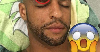 Horrorverletzung bei Felipe Melo