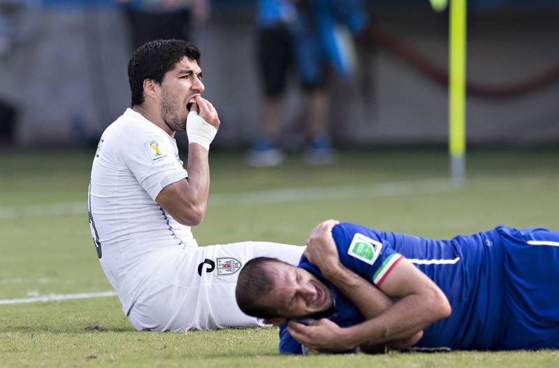 Luis Suarez hält sich die Zähne nach seiner Biss-Attacke auf Giorgio Chiellini